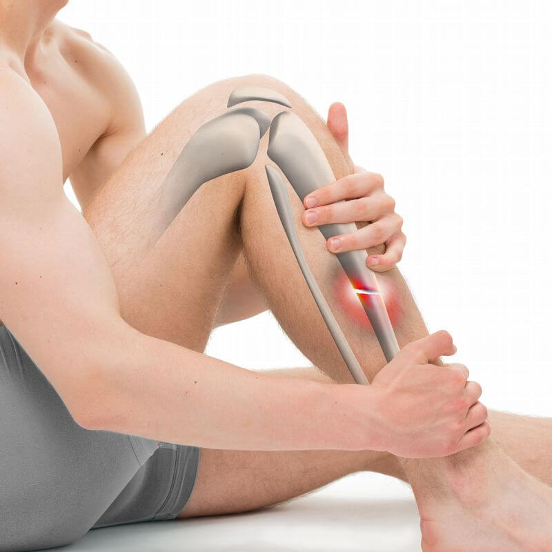 Complex Fracture – Dr Anil Agrawal