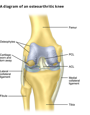 Knee pain dr anil agrawal knee pain is a common problem that can originate in any of the bony structures compromising the knee joint femur tibia fibula the kneecap patella ccuart Image collections